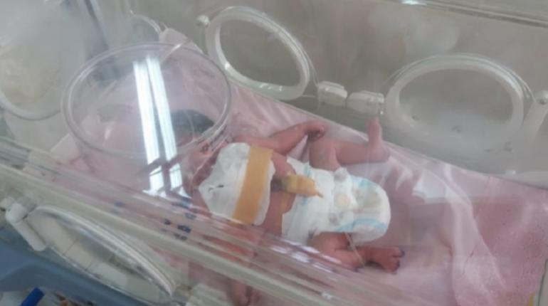 Nace bebé con el corazón fuera del pecho y la trasladan de emergencia a Santa Cruz